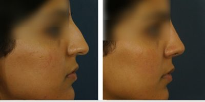 Kulbersh-indian-rhinoplasty1-4-21-17