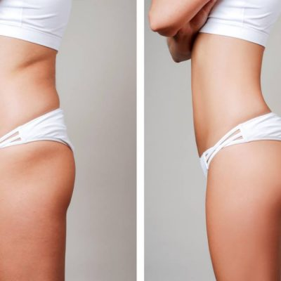 Where-Can-You-Get-Liposuction