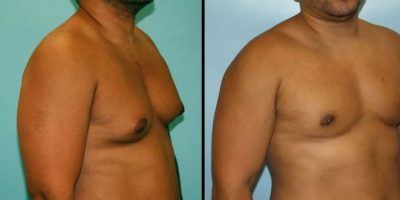 before-after-84-0971-1337
